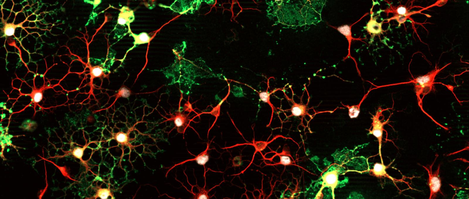 Oligodendrocytes en culture